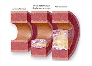 Níveis mais elevados de tiroxina ligados a um risco mais elevado de aterosclerose