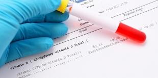 Níveis de vitamina D podem prever o risco de esclerose múltipla