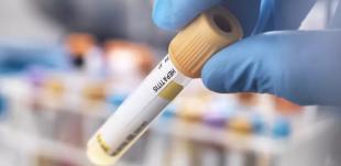 Mês de conscientização sobre as hepatites virais alerta para diagnóstico precoce